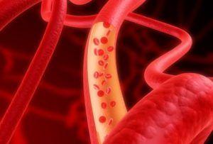 Стимуляция кровотока