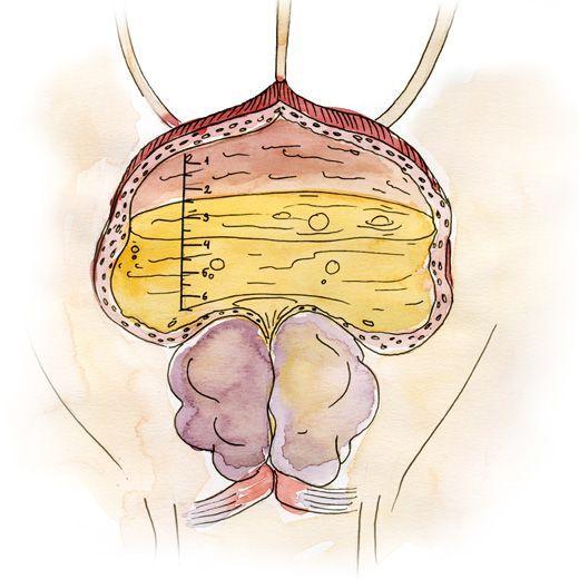 Узи в лечение хронического простатита