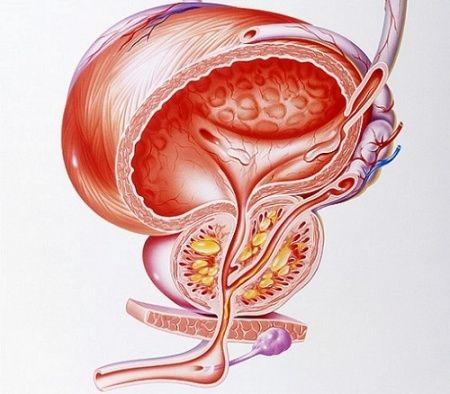 Классификация рака простаты по шкале Глисона и системе ТНМ