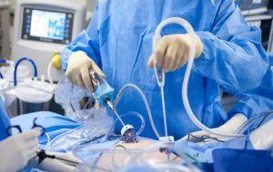 Лапароскопическая простатэктомия
