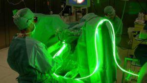 Лечение аденомы лазером