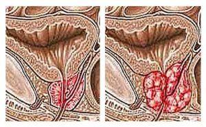 нормальная и пораженная простата