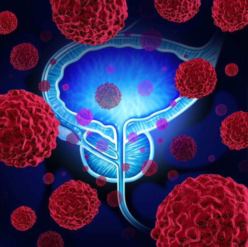 Метастазы в костях при раке предстательной железы