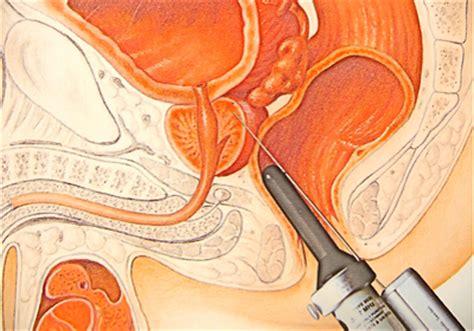 Какие точки берут при биопсии простаты