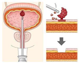 Трансуретральная резекция мочевого пузыря