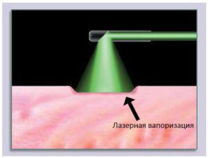 Лазерная вапоризация простаты