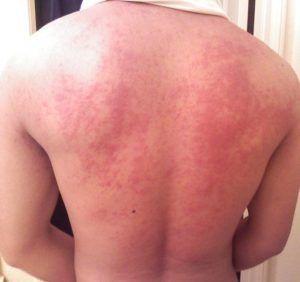 Аллергическая реакция на травы