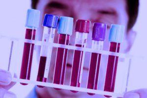 Анализ крови на ПСА