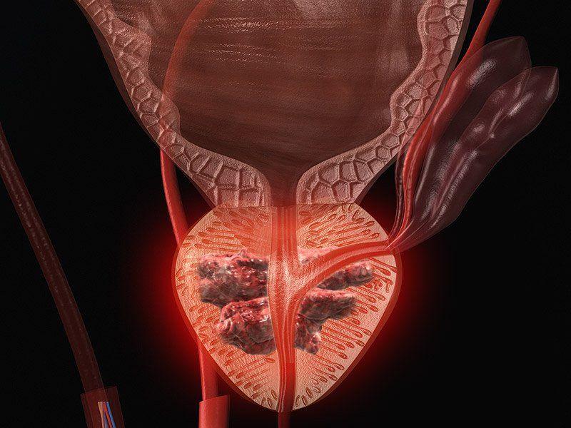 Если при аденоме простаты не идет сперма