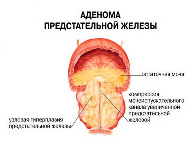 Послеоперационный период после удаления аденомы простаты, восстановление потенции после удаления предстательной железы и реабилитация после операции