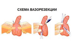 Проведение вазорезекции