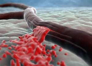 Частое применение способствует внутреннему кровотечению