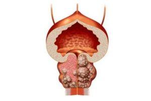 Препарат противопоказан при доброкачественной гиперплазии предстательной железы