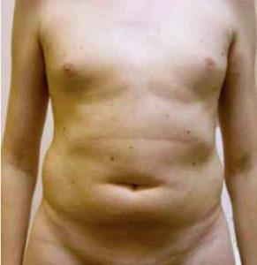 Характерное строение тела — ожирение