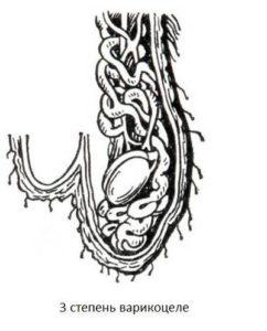 Варикоцеле 3 стадии