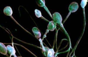 Слабые сперматозоиды