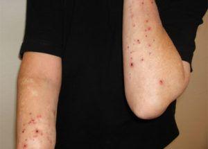 Воспаление кожных покровов