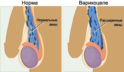 Секс при варикоцеле и кисте яичка