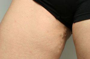 Переход расширения вен с ног на половые органы