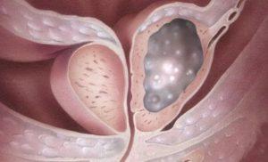 Карцинома – злокачественная опухоль