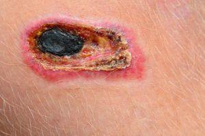 Инфицирование раны