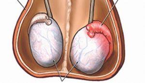 Агглютинация сперматозоидов может возникнуть вследствие орхита у мужчин