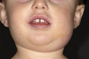 эпидемический паротит у ребенка