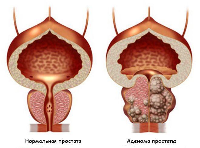 Осложнения при аденоме простаты в чем опасность