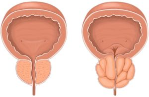 К провоцирующим факторам развития акинозооспермии можно отнести простатит и аденому простаты