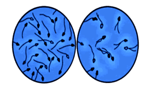 норма и олигоспермия