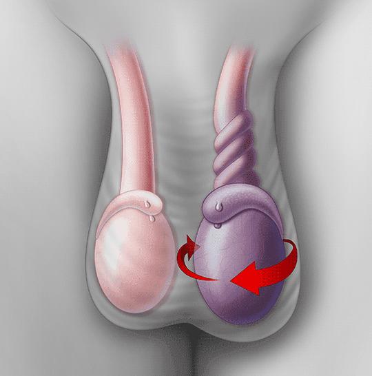 Перекрут гидатиды яичка и морганьи