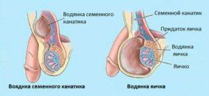 Частой причиной хирургического вмешательства является водянка яичка или семенного канатика