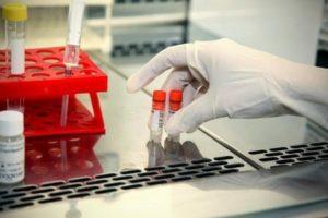 анализ спермы позволяет выявить заболевание