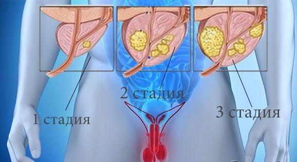 Классификация и стадии аденомы предстательной железы, характерные изменения и симптомы разрастания ДГПЖ