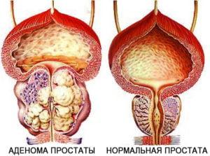 При классификации ДГПЖ учитываются симптомы и объем предстательной железы