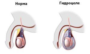 Объем мошонки при гидроцеле