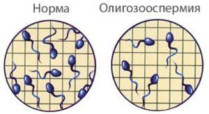 Степень олигоспермии зависит от концентрации сперматозоидов в семени