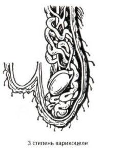 На 3 стадия варикоцеле можно наблюдать дискомфорт при мастурбации