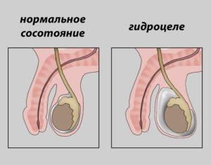 Варикоцеле может спровоцировать развитие гидроцеле