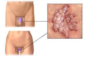 папилломы на половых органах у мужчин и женщин